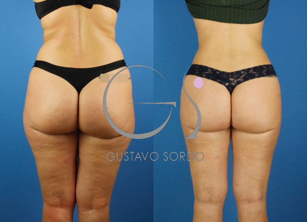 Liposucción de piernas, flancos y glúteos
