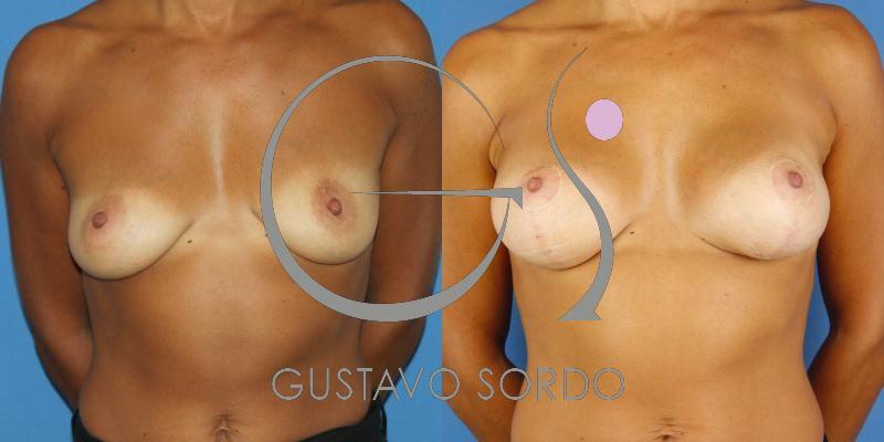 Mastopexia con prótesis de mama. Mujer de 32 años [FOTOS]