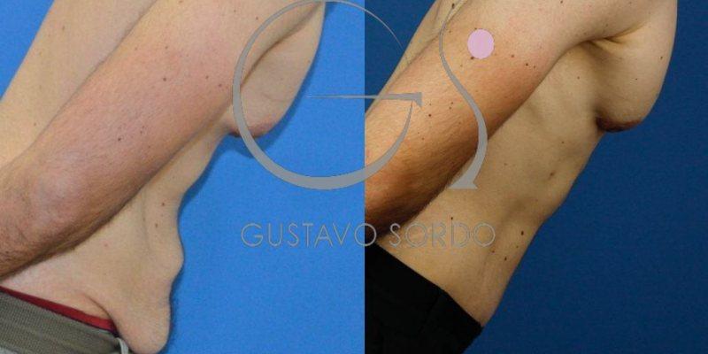 Ginecomastia, abdominoplastia y liposucción [FOTOS]