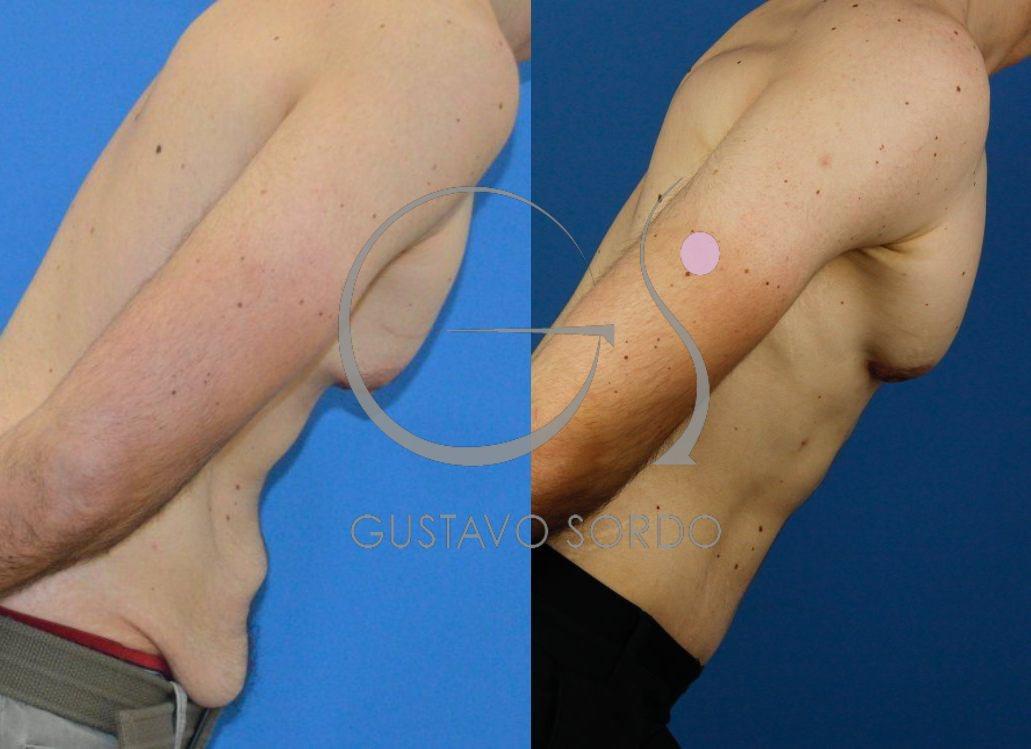 Ginecomastia, abdominoplastia y liposucción. Perfil