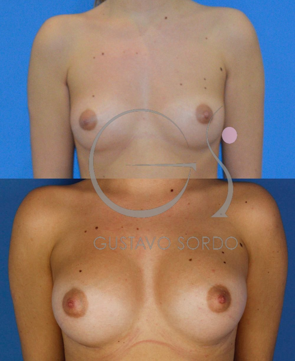 Mamoplastia de aumento implantes anatómicos 295cc