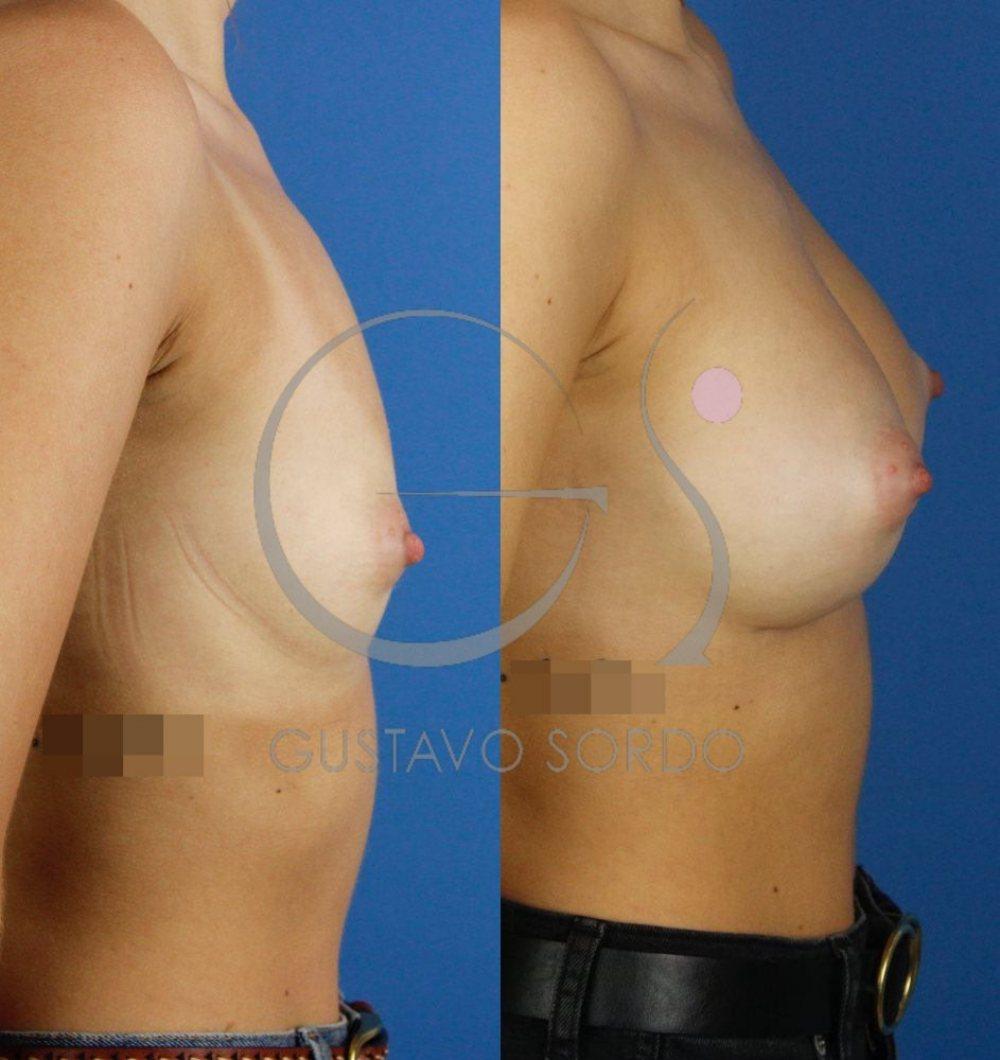 Aumento de pecho con resultado natural. Implantes 255cc. Perfil derecho