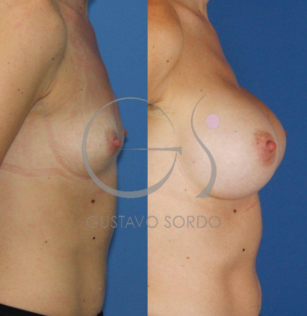 Implantes anatómicos 495cc. Aumento de pecho. Detalle perfil