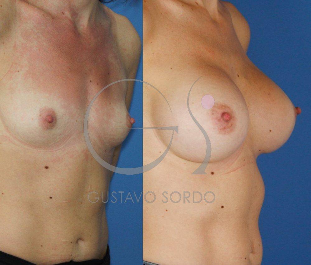 Implantes anatómicos 495cc. Aumento de pecho. Detalle semiperfil