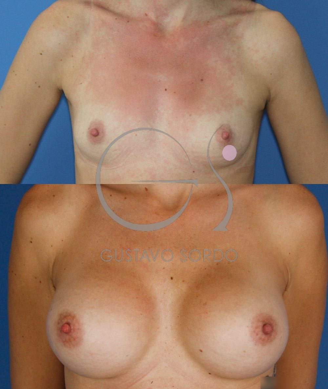 Implantes anatómicos 495cc. Aumento de pecho. Antes y después. Frente