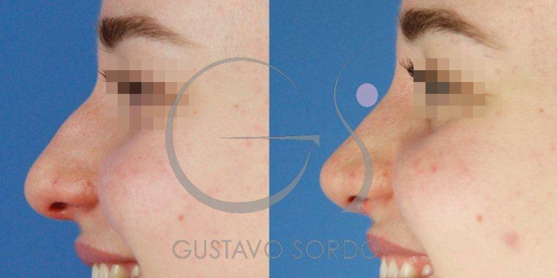Punta de nariz más fina y estilizada con Rinoplastia Ultrasónica