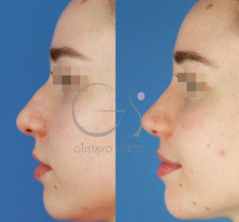 Punta de nariz más fina y estilizada con rinoplastia ultrasónica. Perfil