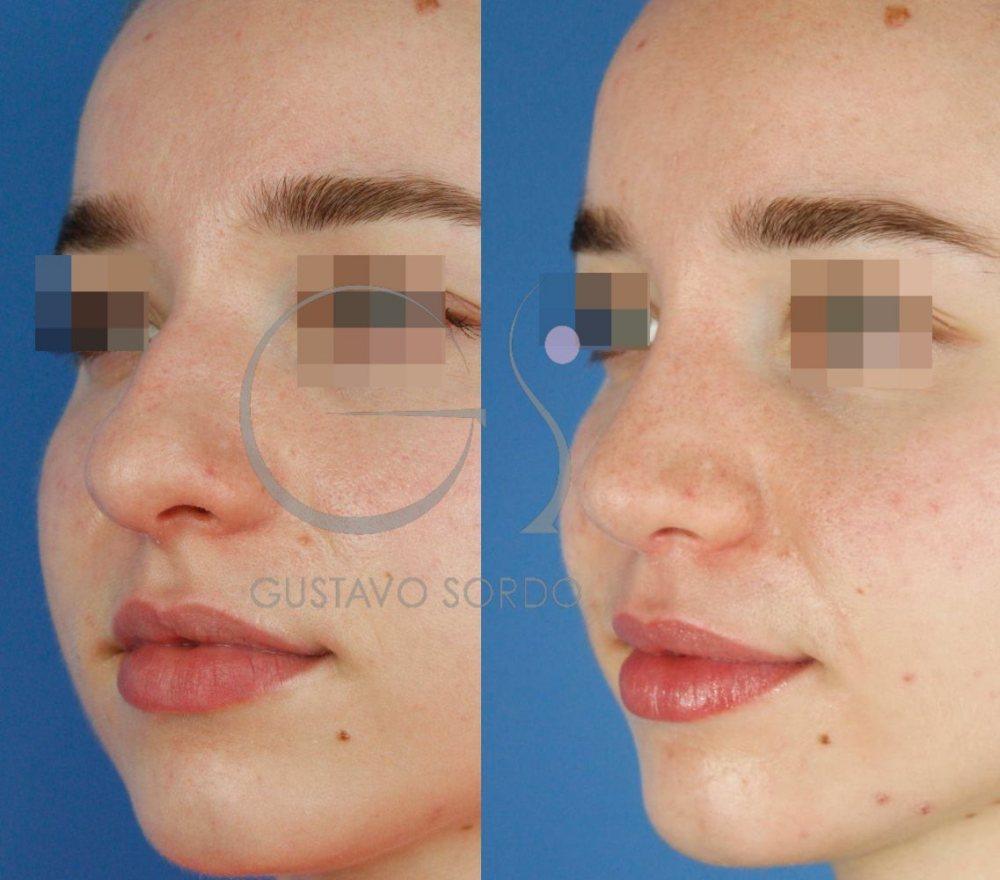 Punta de nariz más fina y estilizada con rinoplastia ultrasónica. Semiperfil