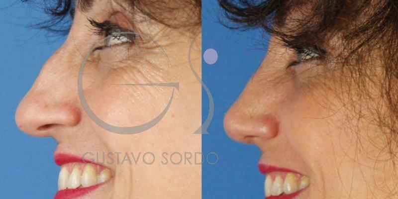 Corrección de traumatismo de nariz con rinoplastia ultrasónica