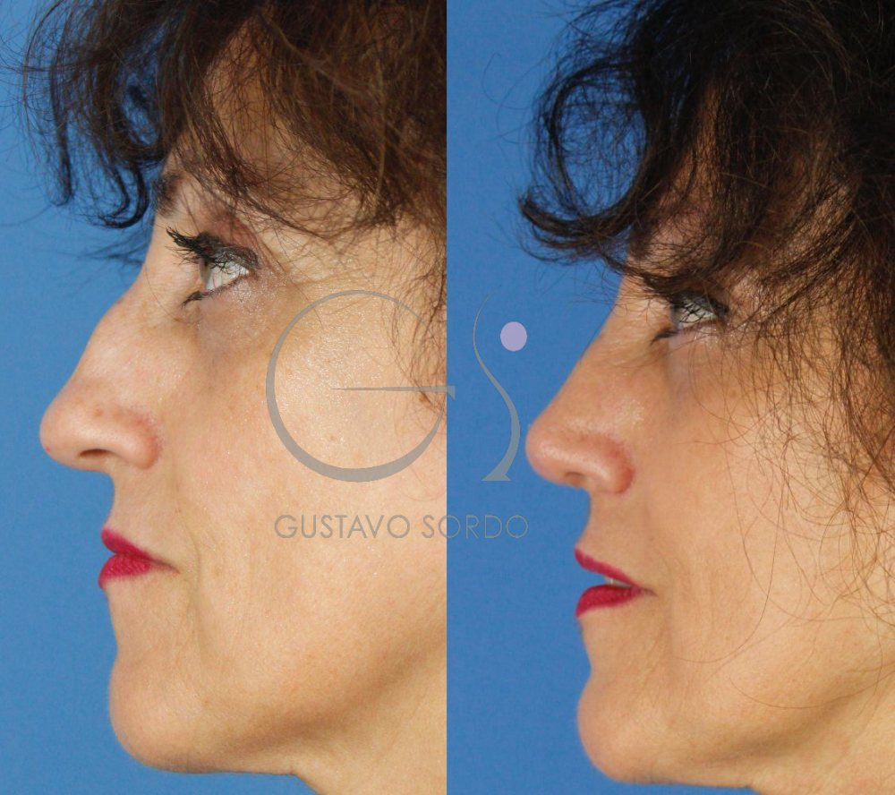 Corrección traumatismo nariz con Rinoplastia Ultrasónica. Perfil