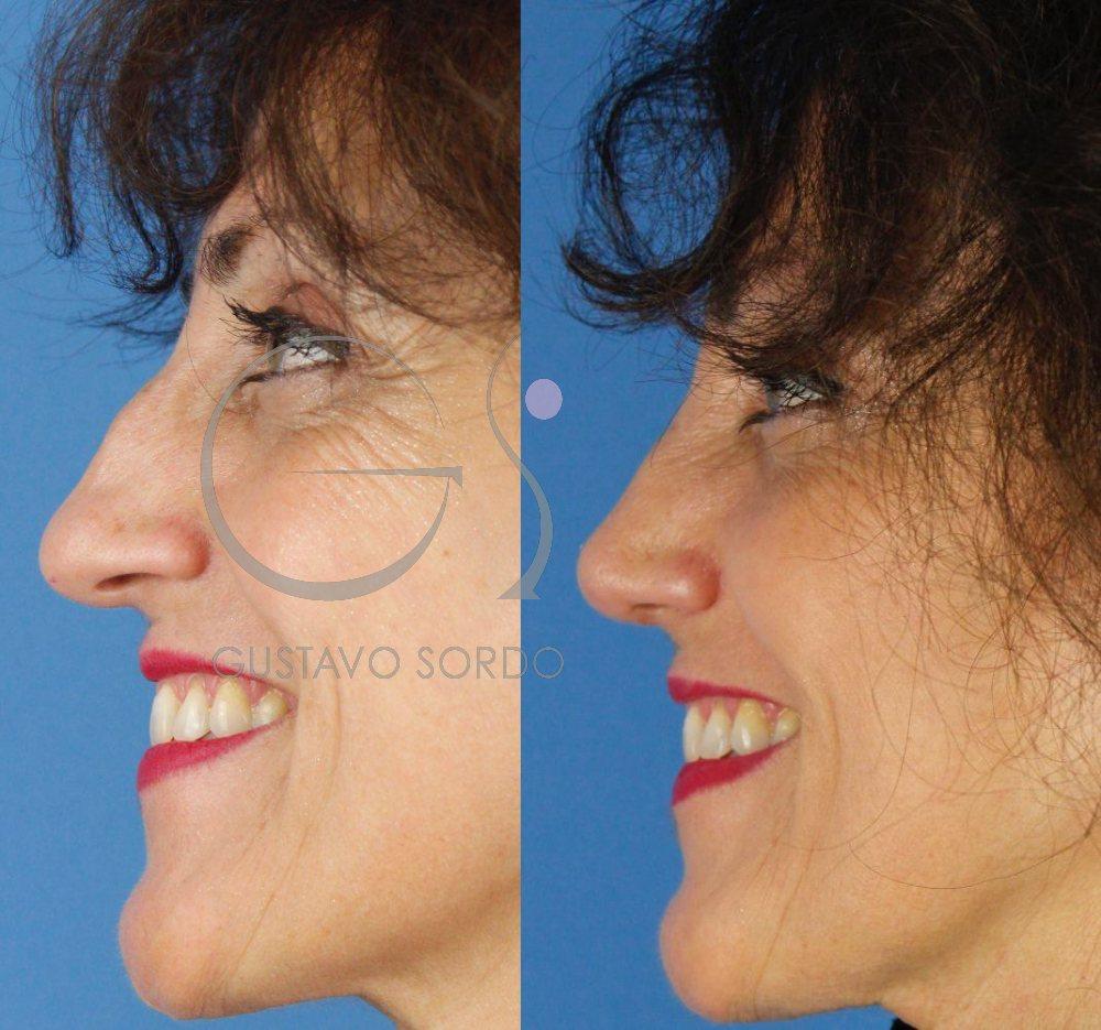 Corrección traumatismo nariz con Rinoplastia Ultrasónica. Perfil con sonrisa