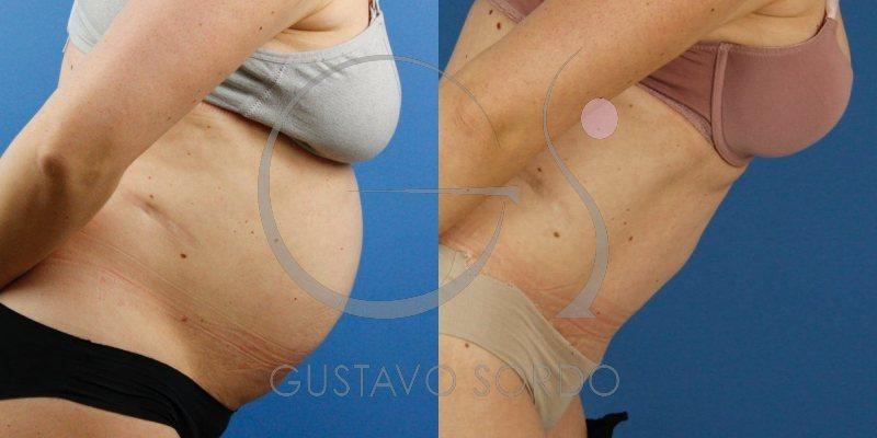 Diástasis abdominal con hernia. Abdominoplastia y liposucción
