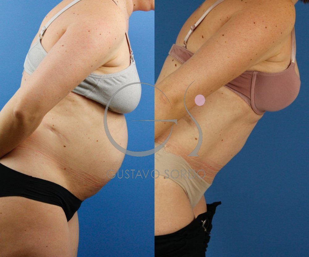 Diástasis abdominal con hernia. Abdominoplastia. Perfil inclinado