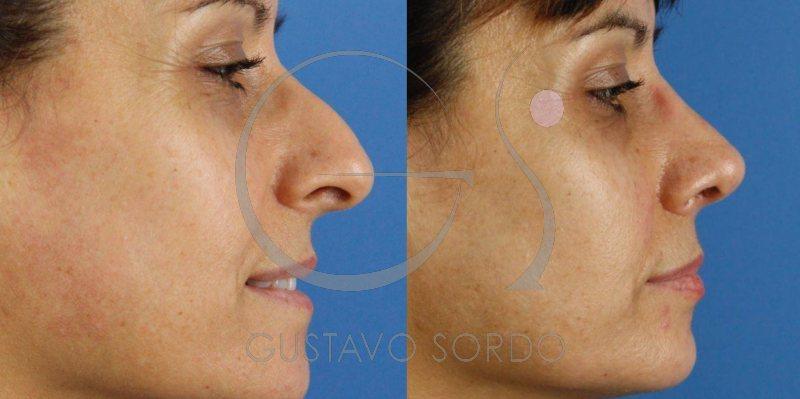 Resultado de rinoplastia al mes: Eliminar caballete y corrección punta nasal