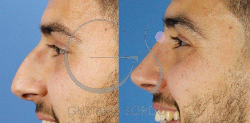 Rinoplastia ultrasónica hombre. Mejora funcional y estética