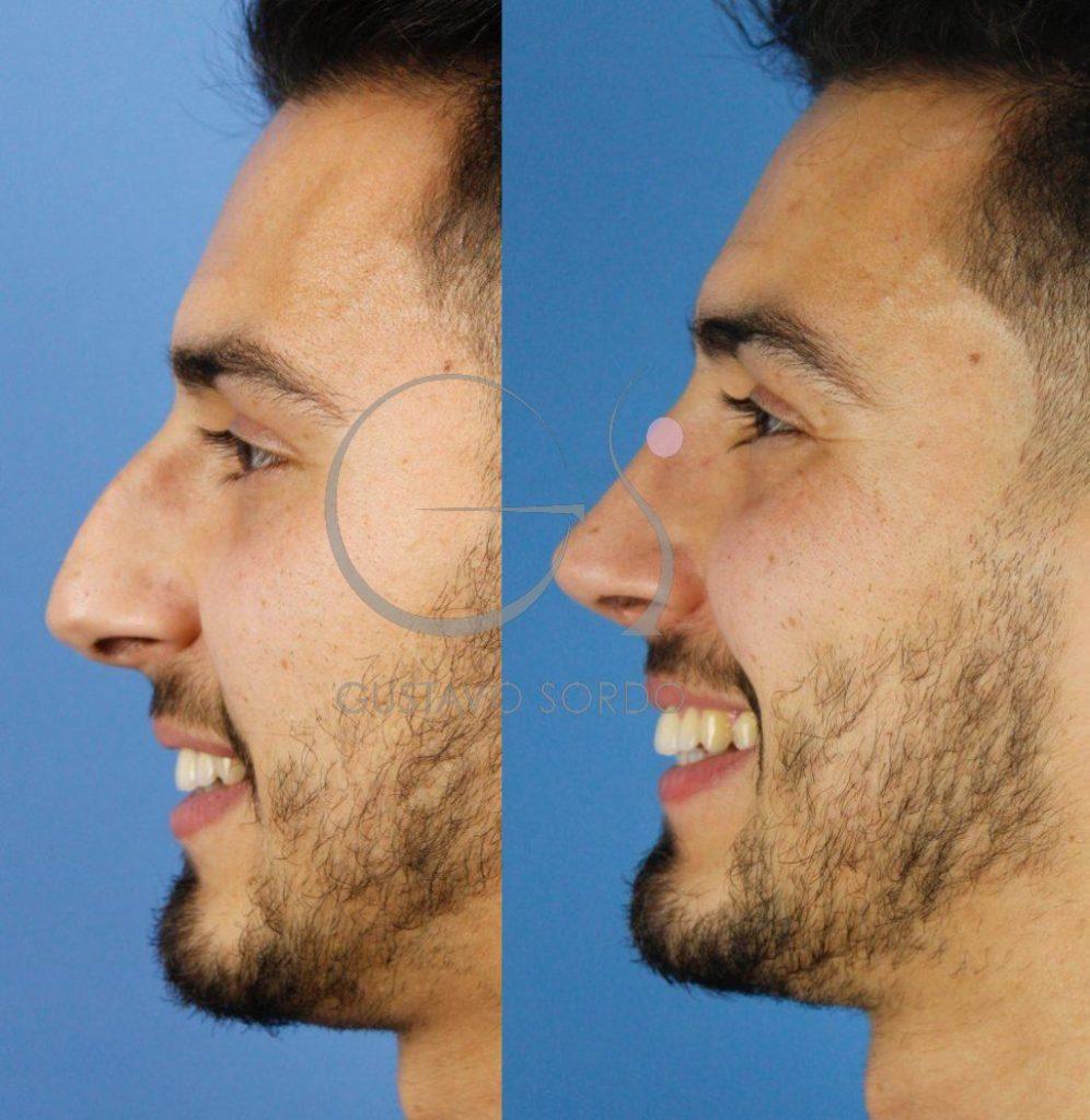 Rinoplastia ultrasónica hombre. Mejora funcional y estética. Perfil