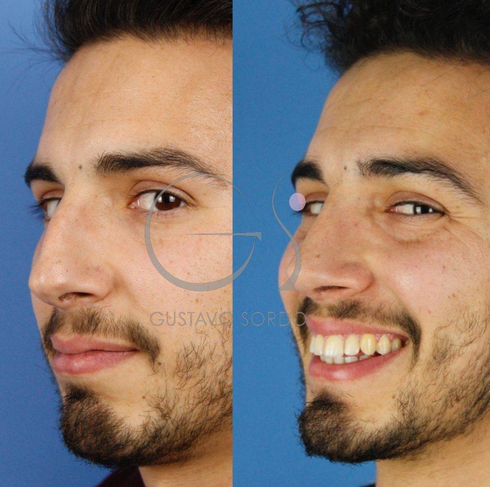 Rinoplastia ultrasónica hombre. Mejora funcional y estética. Semiperfil