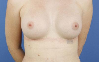 El sujetador interno en el aumento de pecho