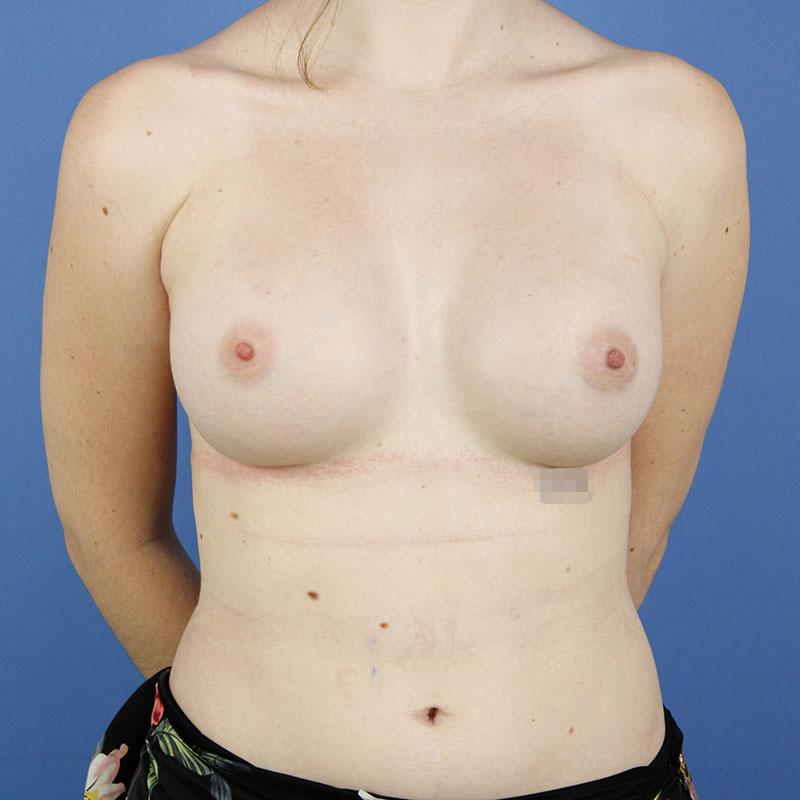 despues de un aumento de mamas con el Dr. Gustavo Sordo