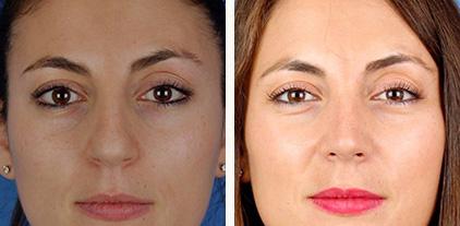 casos de rinoplastia. Comparación de fotos antes y después