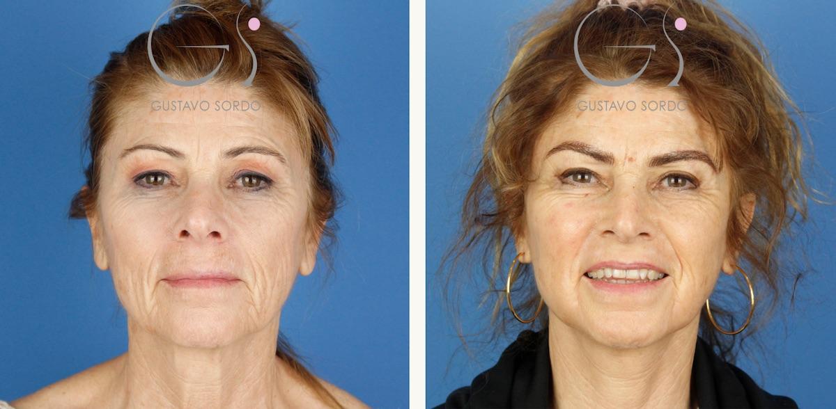 Lifting de cara, cuello, cejas y blefaroplastia
