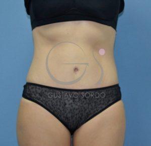 Abdominoplastia: reslutados de la operación