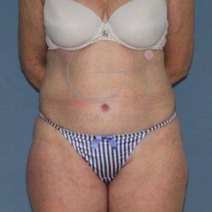 Resultado de una abdominoplastia