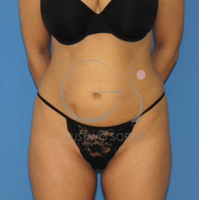 Antes y después de una liposuccion en madrid