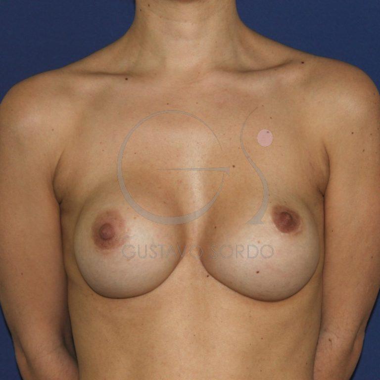 antes de una operación de sustitución de implantes mamarios