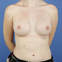 casos de aumento de mamas