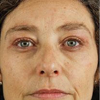 Despues de una blefaroplastia en madrid, resultados realaes
