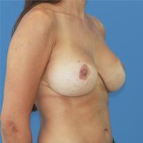 elevación de pecho con una mastopexia: resultado natural