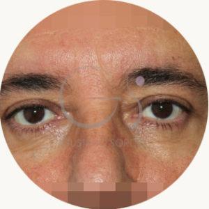 fotos reales blefaroplastia