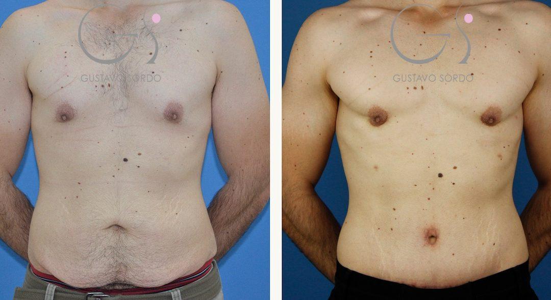 Ginecomastia, abdominoplastia y liposucción