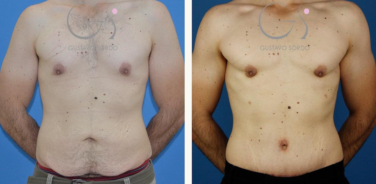 Abdominoplastia, ginecomastia  y liposucción