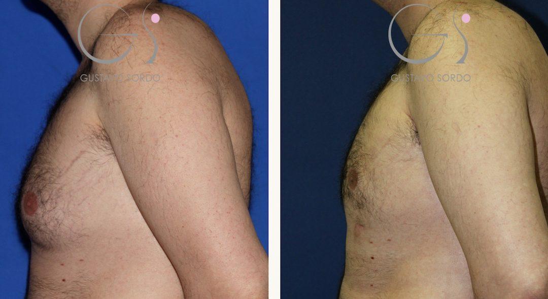 Ginecomastia: Fotos del antes y después hombre 35 años