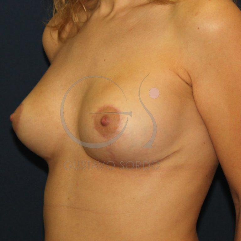fotos de cambio de prótesis mamarias