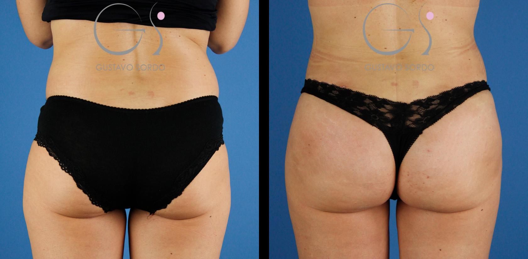 Aumento de glúteos y liposucción en mujer de 39 años