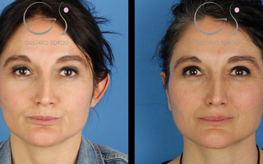 Resultado de una otoplastia en mujer de 40 años