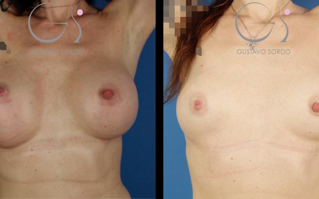 Retirada de implantes sin aumento de pecho
