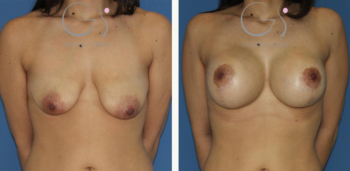 Mastopexia con aumento de pecho con implantes redondos 375 cc