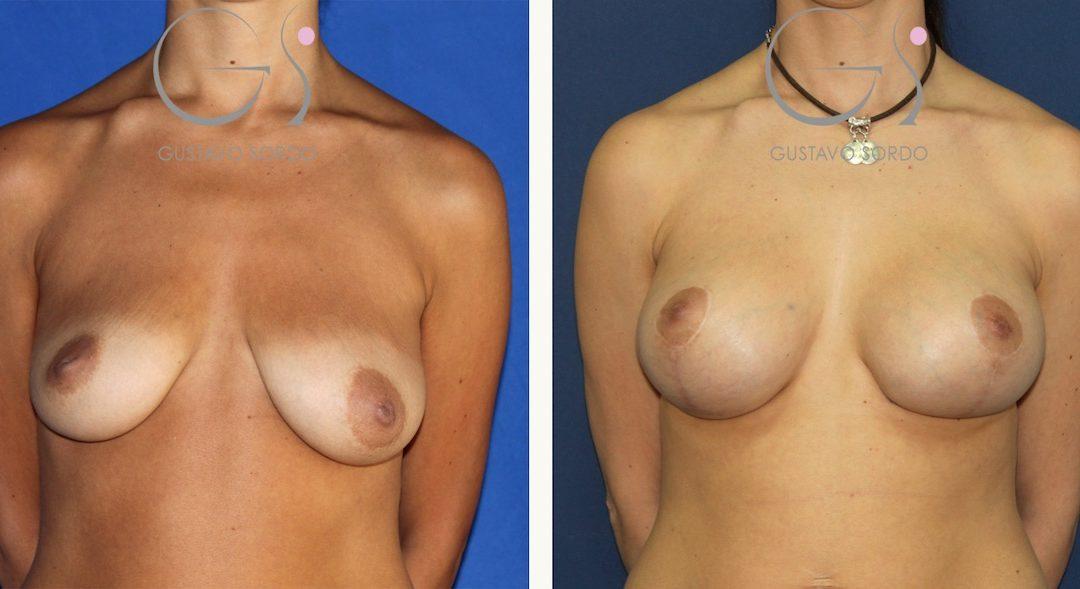 Mastopexia con aumento de pecho en mujer de 35 años