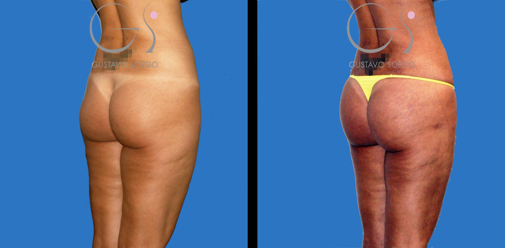 liposucción y lipofilling en mujer de 34 años