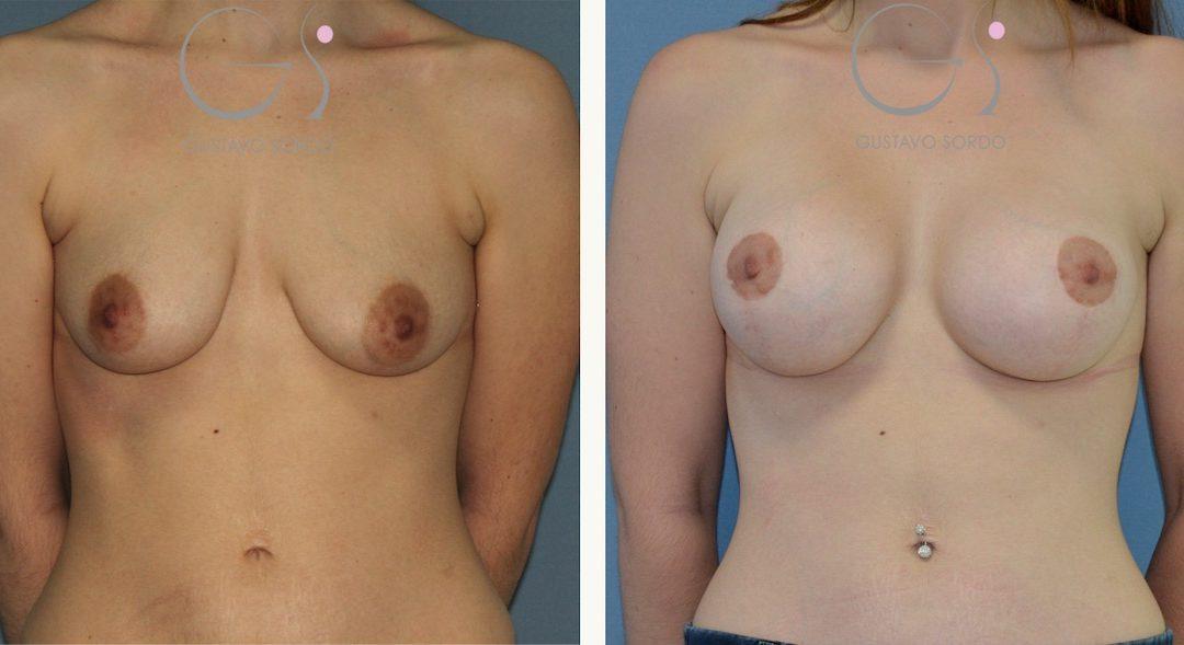 Mastopexia con aumento de pecho en mujer de 29 años