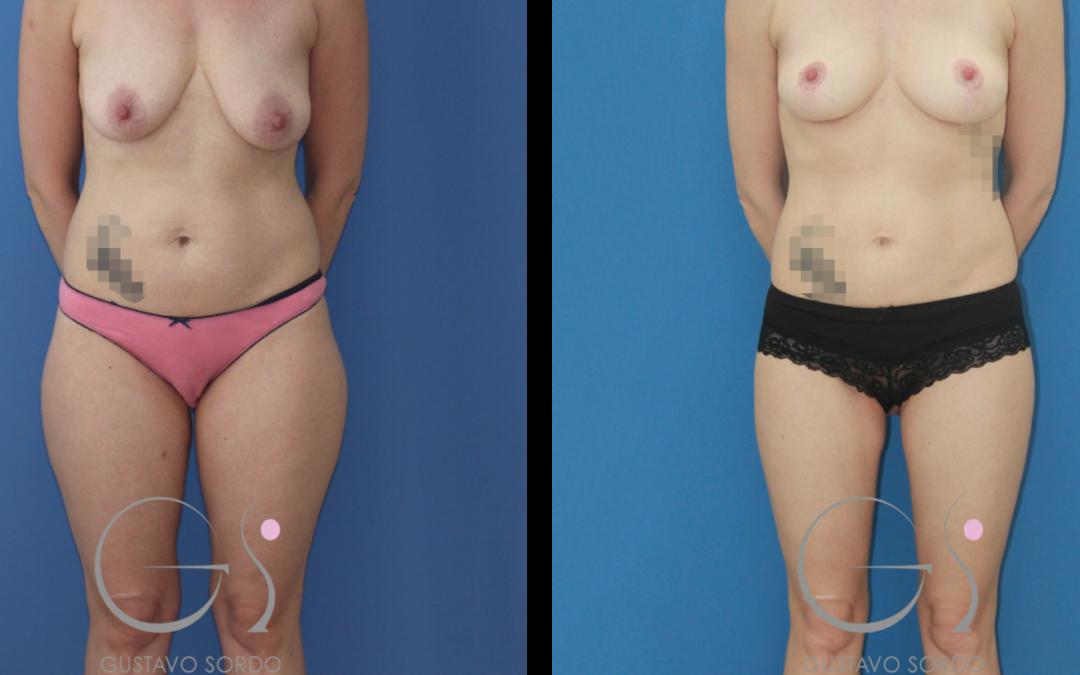 Cirugía integral postparto: lipofilling de mamas, liposucción y mastopexia