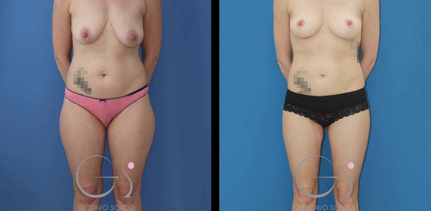 Cirugía integral postparto: mastopexia, lipofilling de mamas y liposucción