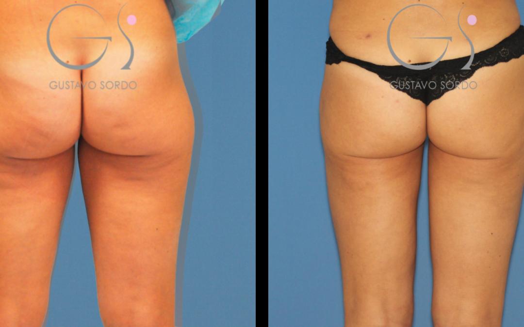 Aumento de glúteos con lifting brasileño y liposucción