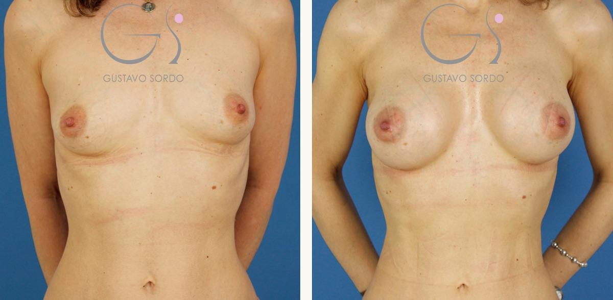 Aumento de pecho y liposucción de muslos y cartucheras