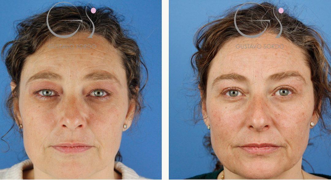 Blefaroplastia en mujer de 55 años