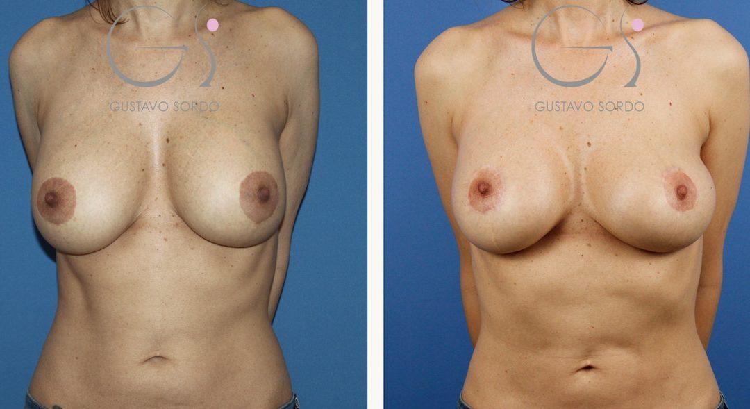 Cambio de implantes por rotura y liposucción